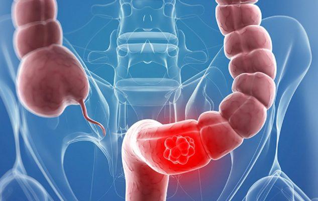 Viêm xung huyết đại tràng: Triệu chứng và cách khắc phục